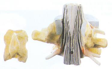 显示脊髓腰椎骶膨大,脊髓圆锥,终丝,马尾以及椎间孔和硬脊膜等结构,共